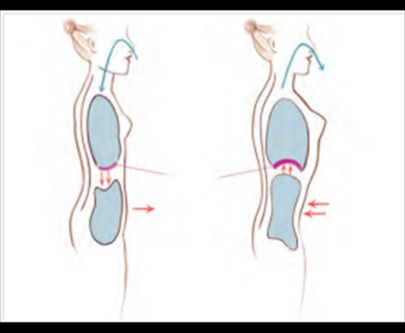 Los dolores en lo bajo del vientre tira los riñones y las separaciones sanguinolentas