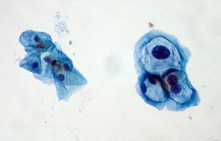 Foto: Identificar el genotipo del virus del papiloma que causa lesiones uterinas permite determinar el riesgo de cáncer (FLICKR/ED UTHMAN)