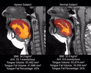 Foto: El tamaño de la lengua puede predecir el riesgo de apnea del sueño en adultos obesos (AAS)