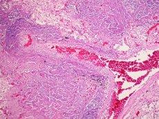 Foto: L'OMS detecta gairebé mig milió de casos de tuberculosi més dels que es pensaven (FLICKER/ PULMONARY PATHOLOGY)