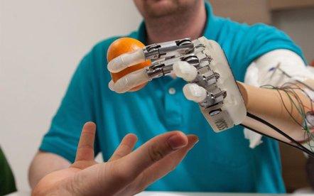 Foto: Controlar la mano biónica con la mente (EPFL (SUIZA)/SSSA (ITALIA) )