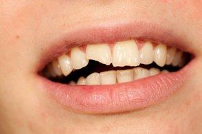 Foto: Traumatismos en los dientes de leche (GETTY//DABJOLA)