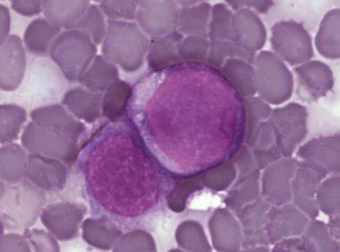 Foto: IBBTEC e IFCA participan en un estudio sobre leucemia (UC)