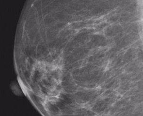 Foto: Nueva vía para identificar cáncer de mama agresivos ( RADIOLOGICAL SOCIETY OF NORTH AMERICA)