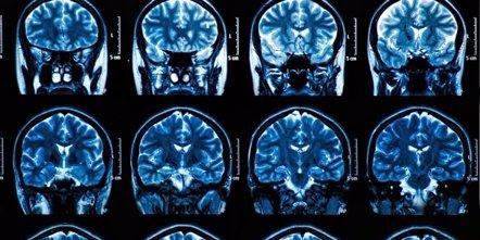 Foto: Identifican el mecanismo de la inflamación del cerebro (GETTY/BUNYOS)