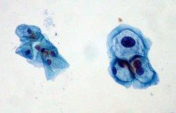 Confirmen que el virus del papil·loma també causa càncer de coll (FLICKR/ED UTHMAN)