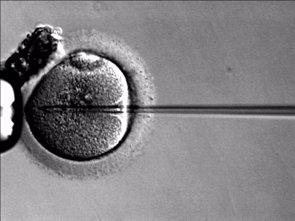Alertan del uso excesivo de la inyección intracitoplasmática de espermatozoides (WIKIMEDIA COMMONS)