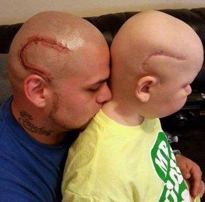 Padre se tatúa la cicatriz de su hijo con cáncer
