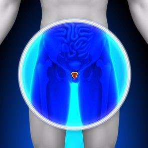 Un stent urológico temporal resuelve problemas de próstata sin cirugía (GETTY//DECADE3D)