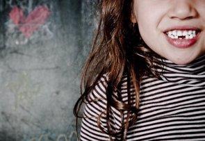 Nuevas revelaciones sobre la pérdida de los dientes en la infancia (FLICKR/ GIULIO D'ALFONSO)