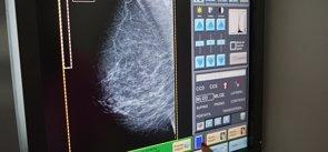 No hallan evidencia para poner un tope por edad a las mamografías (EUROPA PRESS)
