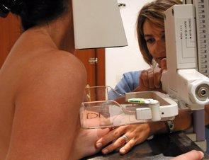 Posible sobrediagnóstico del cáncer de mama con los programas de cribado (EUROPA PRESS/JUNTA DE ANDALUCÍA)