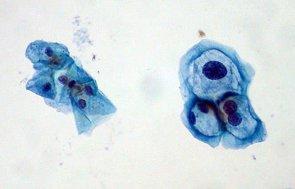 Más casos de cáncer de cabeza y cuello por el papilomavirus (FLICKR/ED UTHMAN)